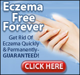 Get Rid of Eczema Free Forever