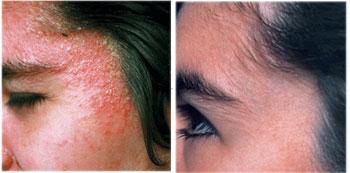 Facial eczema treatments
